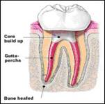 http://www.nashvillefirstimpressions.com/images/tooth_cleaned_root_canal_2.jpg